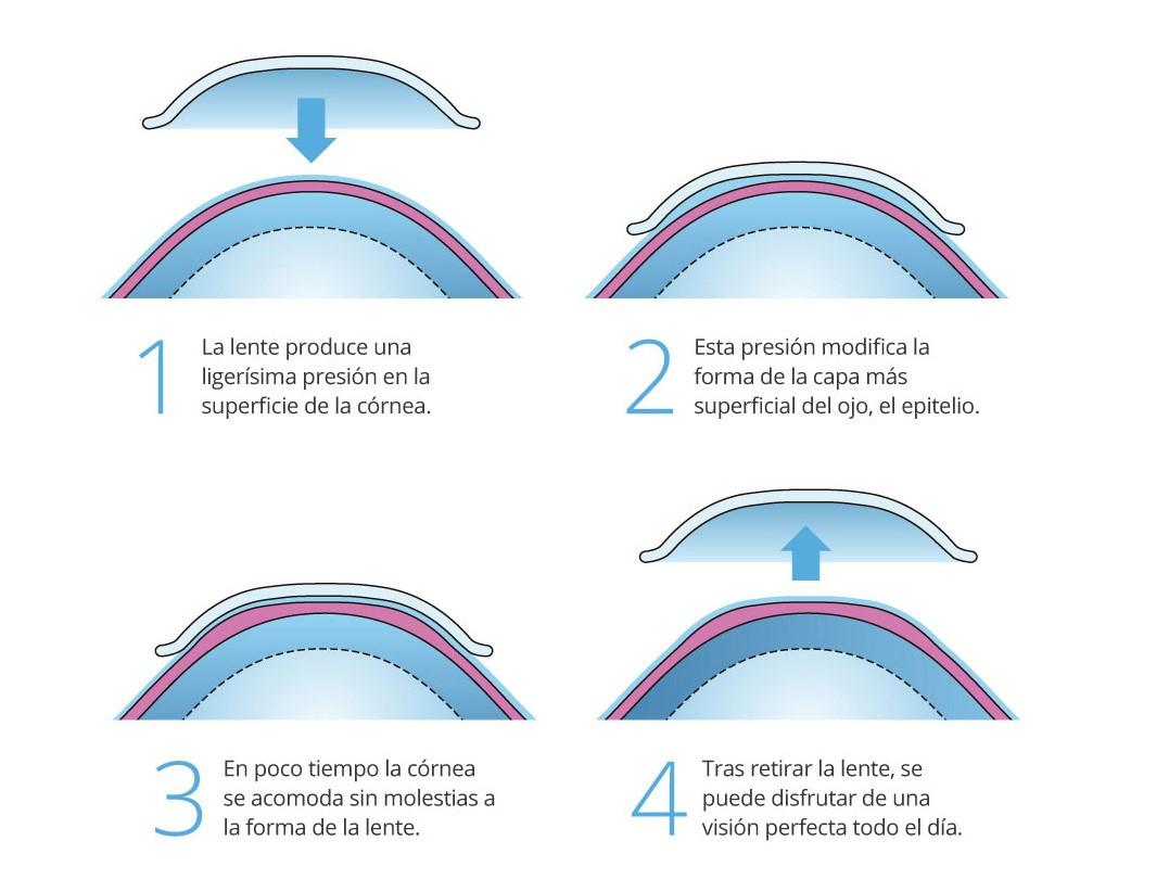 Lents contacte orto-k tractament per al control de miopia. ús nocturn