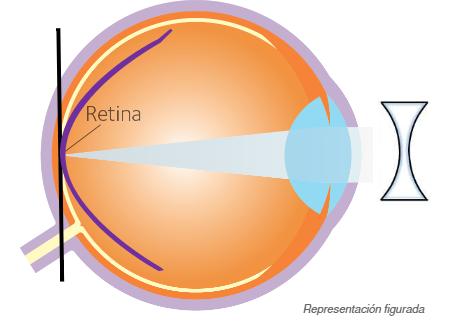 Imatge explicativa de com el tractament amb LC fa al control de miopio. Actuen per aconseguir evitar o frenar el creixement de la miopia